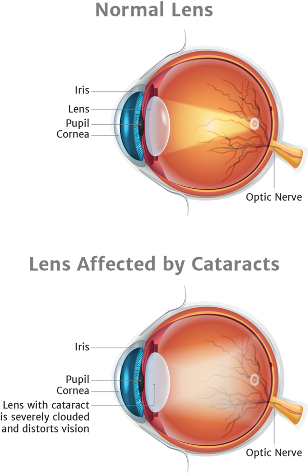 Illustration of lens affected by cataracts